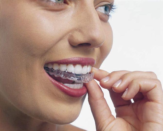 Отбеливание зубов: до и после